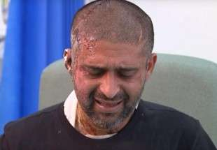 London acid attack victim Mukhtar speaks out