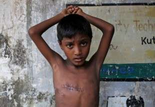 Mohammed Shoaib, 7, who was shot in his chest before crossing the border from Myanmar in August, shows his injury outside a medical centre after seeing a doctor, at Kutupalong refugee camp near Cox