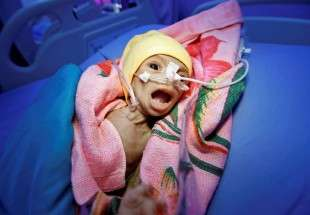 War and food shortage ravage Yemen 2 (photo)