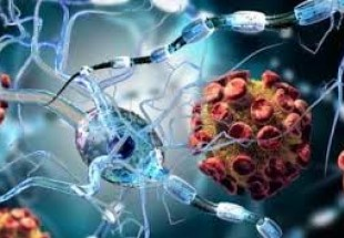 Iranian scientists bring new hope for MS affected patients