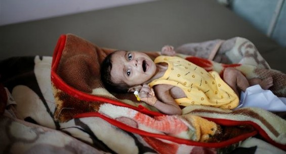 UN warns of worst famine threatening 12 million Yemeni lives