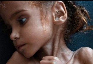Amal Hussein, face of starving Yemen, dies at 7