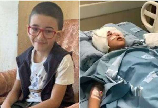 Palestinian boy shot by Israeli forces loses left eye